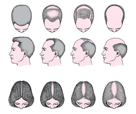 Лучшее средство для рост волос