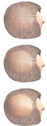 Диффузное выпадение волос негормональной этиологии