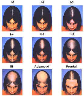Что такое диффузное выпадение волос у женщин
