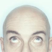 Пересадка волос отзывы, результаты