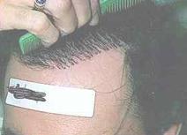 Пересадка волос последствия