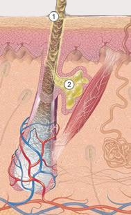 Сальная железа, кожное сало, секрет сальной железы